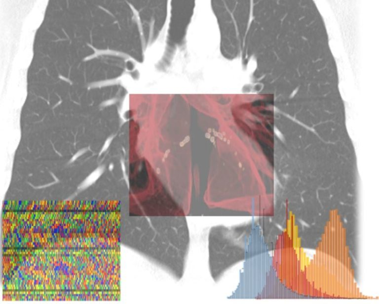 Coronavirus, intelligenza artificiale in campo per calcolare il rischio